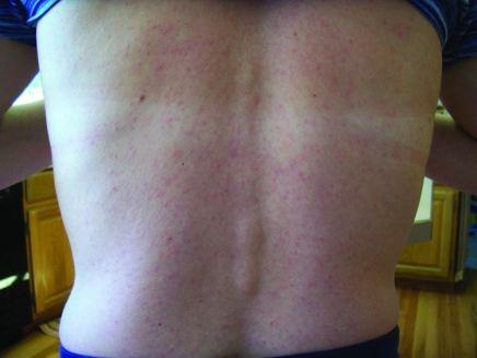 Zika rash (from Emeging Infectious Diseases)